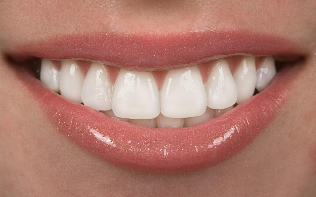 Get Glamorous Dental Veneers in Brentwood, CA – All About the Procedure