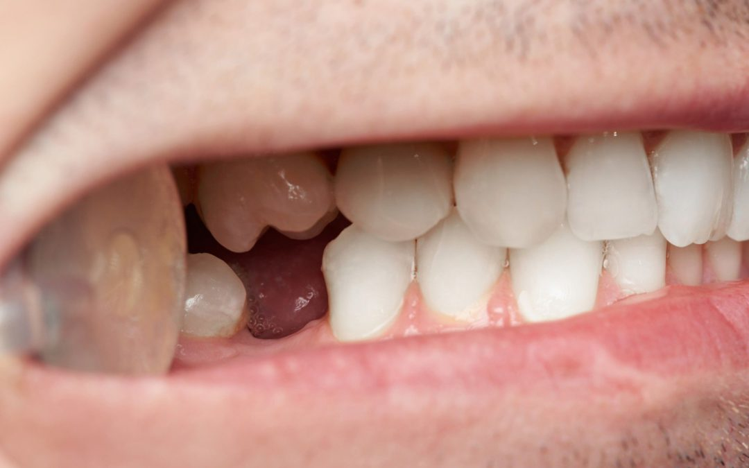 How Dental Implants Work to Create a Glamorous, Long-Lasting Smile
